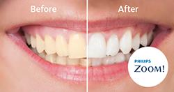 Teeth Whitening Robinson Dentistry