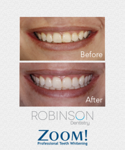 Robinson-Zoom-Before-&-After-3