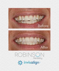Robinson-Invisalign-Case-6