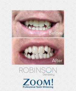 Robinson-Zoom-Before-&-After-1