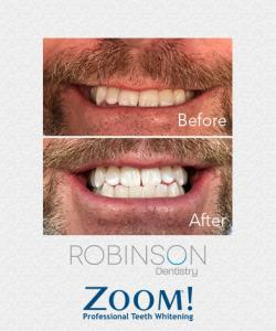 Robinson-Zoom-Before-&-After-2