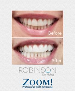 Zoom image 20