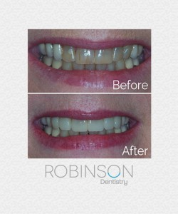 betty-beforeafter-robinson-dentistry