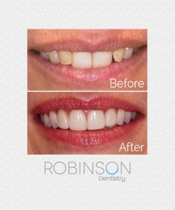 heather-beforeafter-robinson-dentistry