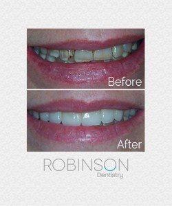 jessica-beforeafter-robinson-dentistry