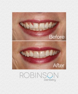 patient-beforeafter-robinson-dentistry
