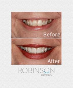 robinson-beforeafter-Oct2017