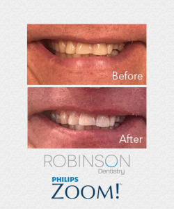 robinson-beforeafter-ZOOM