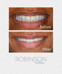 robinson-beforeafter-invisalign