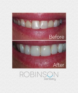traci-beforeafter-robinson-dentistry