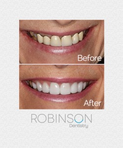 traci-beforeafter-robinson-dentistry2