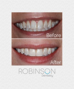 tracy-beforeafter-robinson-dentistry